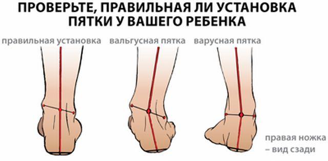 Вальгусная деформация стопы: причины развития патологии, возможные ...