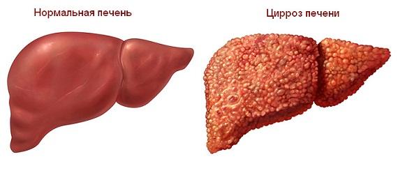 Лабораторные показатели при заболеваниях печени