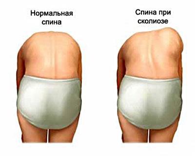 skolioz-lechenie-skolioza_2