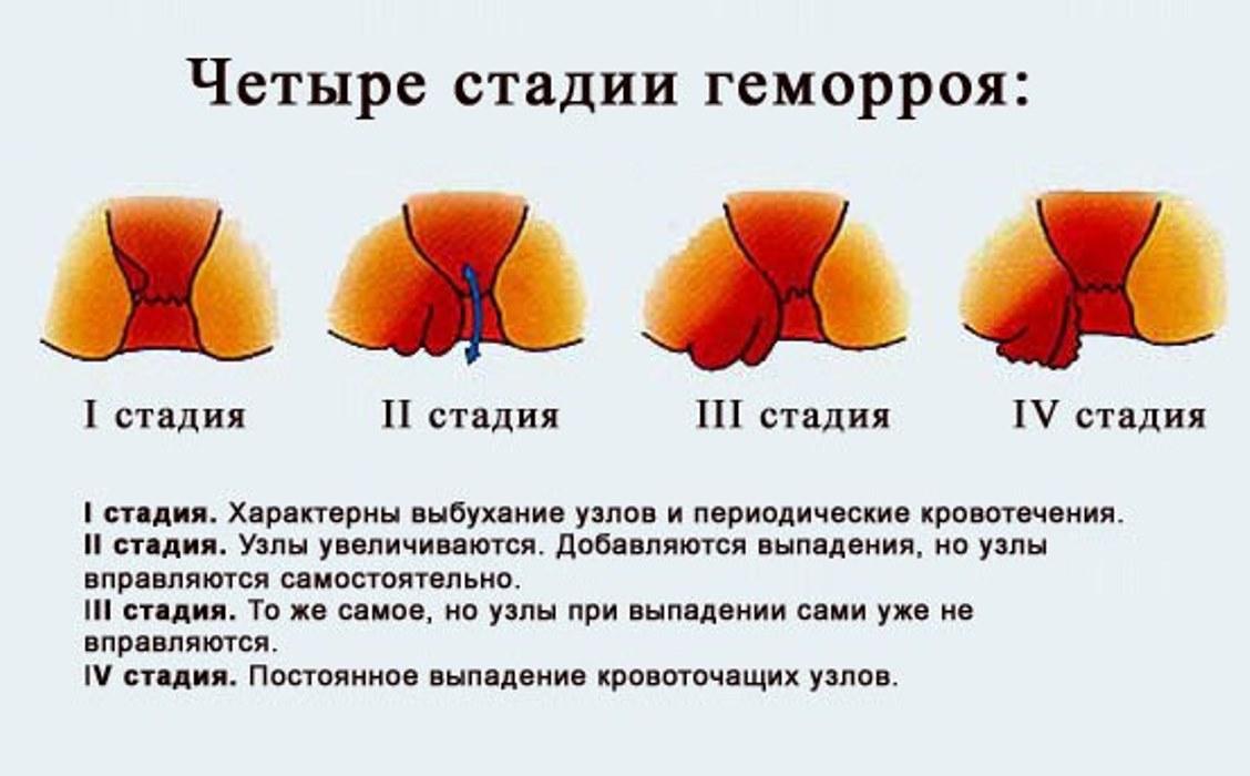 Геморрой во время беременности лечение