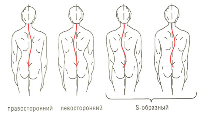 vidi-skolioza