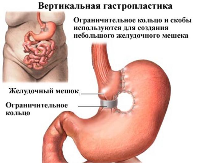 http://okeydoc.ru/wp-content/uploads/2015/11/wcs5.jpg