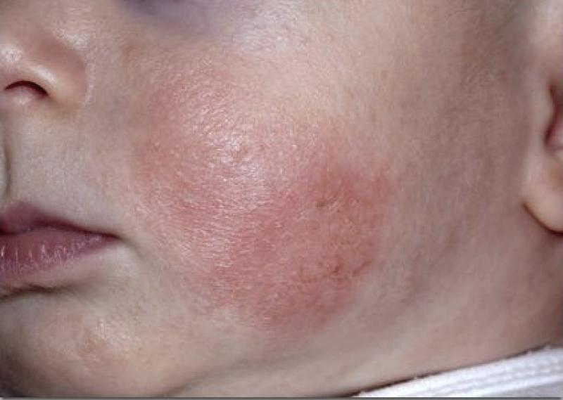 Атопический-дерматит-у-детей-e1424594434611