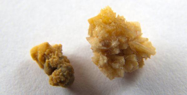 оксалатные-камни