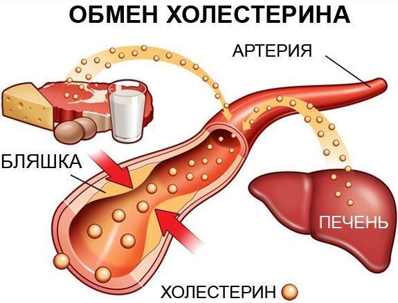 Высокий холестерин симптомы и лечение