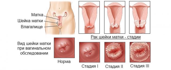Как лечат шейку матки во время беременности