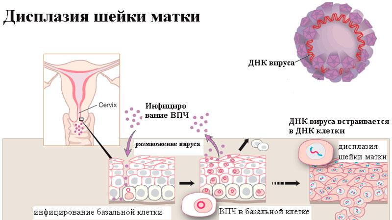 Папилломы на шейке матки лечение