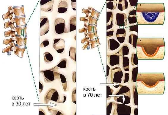 1.Сенильный остеопороз