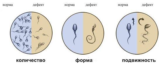виды спермы фото