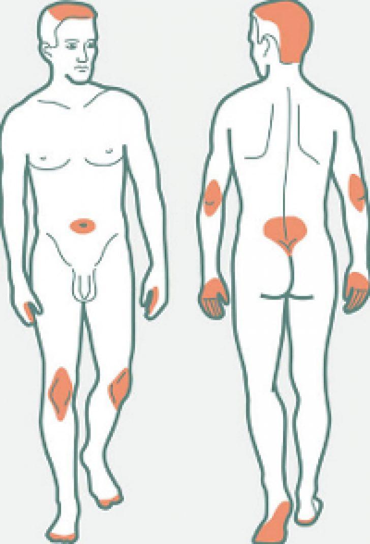 Санаторно-курортное лечение с гепатитом