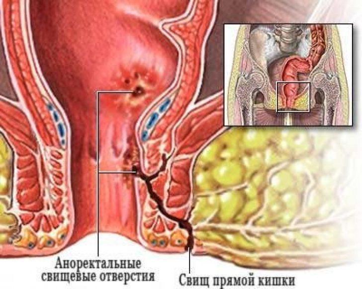 rekto-vaginalniy-svish
