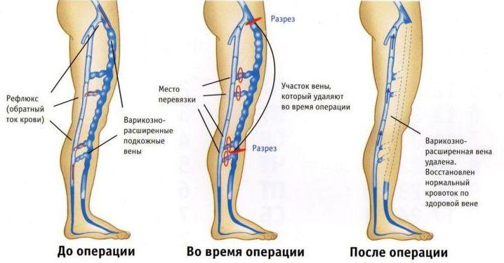 Тромбоз операция