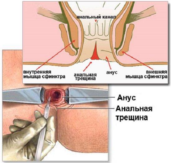 Симптомы и лечение геморроя на Medside.ru