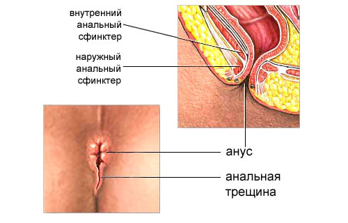 Анальный секс как лечить трещинки