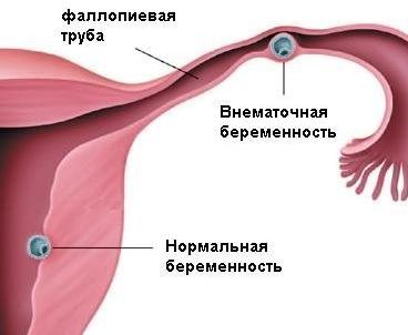 Кровотечение при внематочной беременности