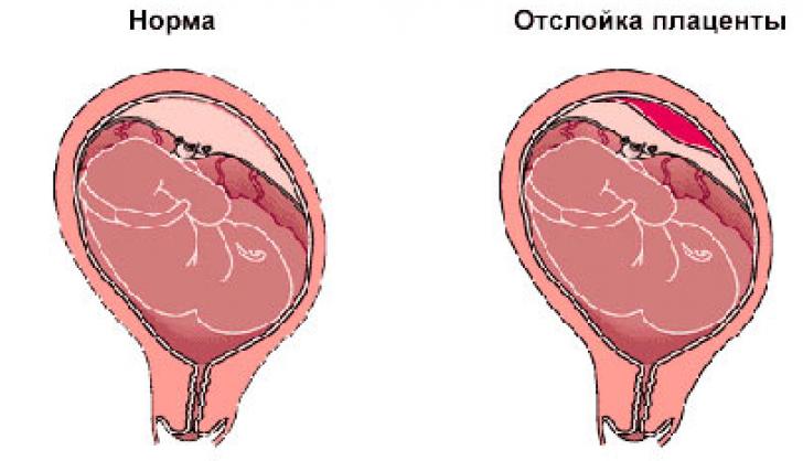 Как лечат отслойку плаценты в первом триместре