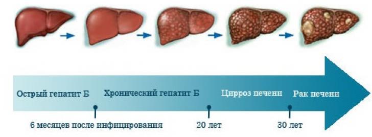 Чем лечить гепатит с в домашних условиях и что надо есть