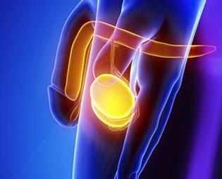Водянка яичка – симптомы, причины, диагностика, методы лечения водянки ляичка, профилактика и возможные осложнения