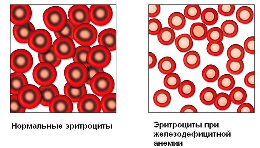 Какие продукты повышают гемоглобин в крови: причины понижения ...