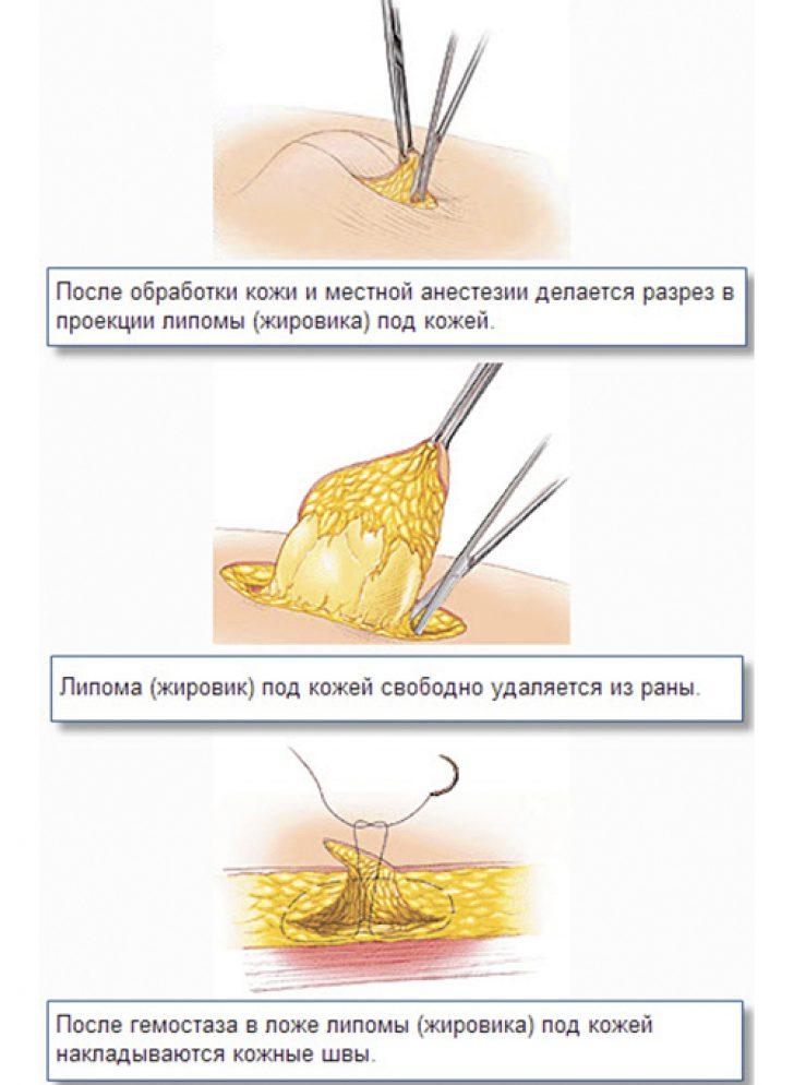 Мази для лечения пятен на ногах
