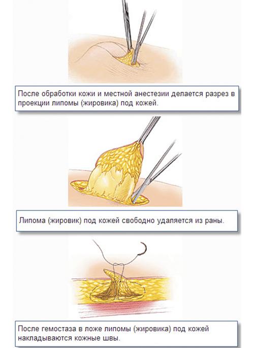видео как убрать жировики под глазами