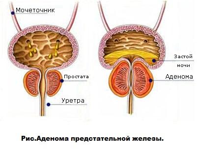 Зн предстательной железы мкб 10