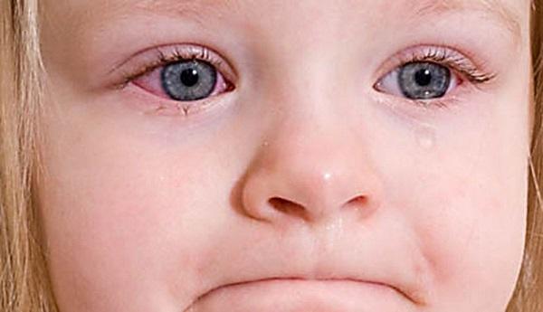 allergicheskij-kon-yunktivit-u-detej