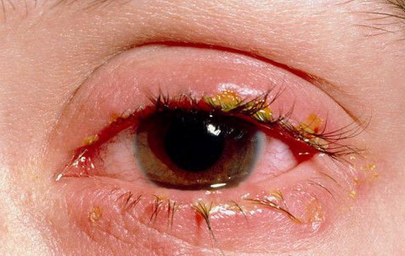 blefarit (1)