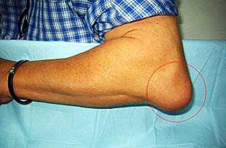 соль против бурсита коленного сустава
