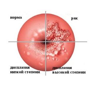 Диета после лечение рака ш.матки