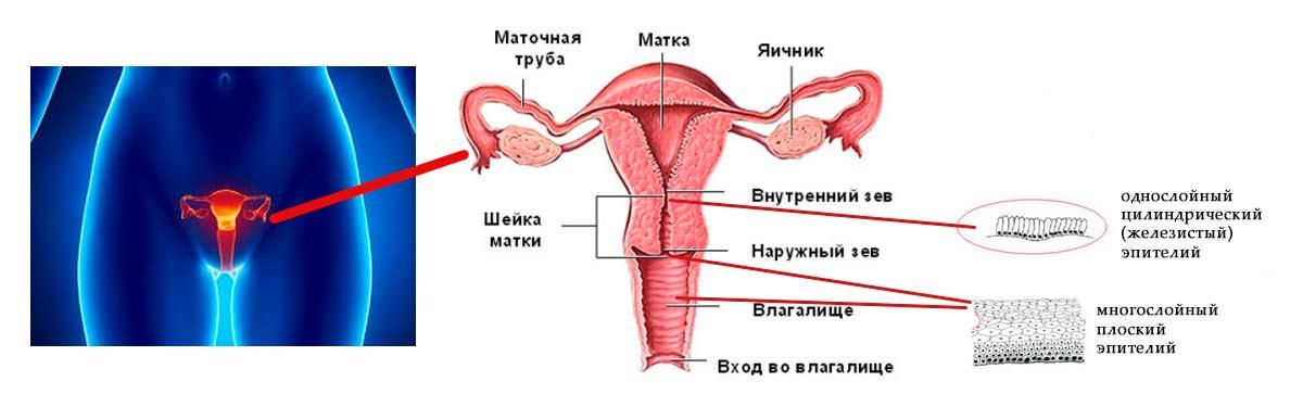 Как выглядит эрозия шейки матки и как его лечить