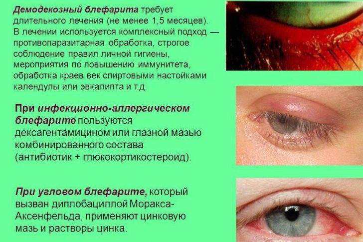 hronicheskij-blefarit14