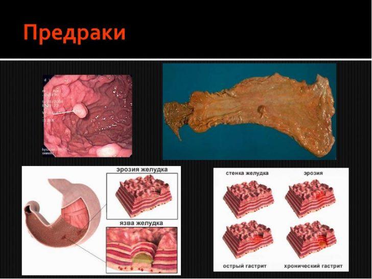 метаплазия стенок желудка.