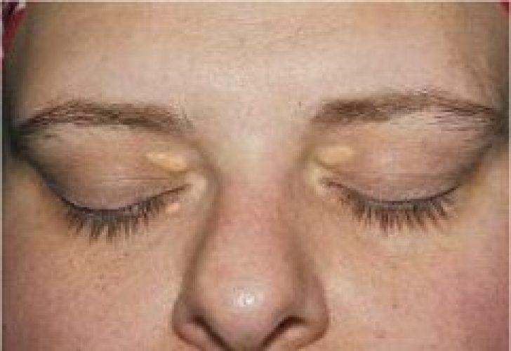 Как убрать жировик у глаза в домашних условиях