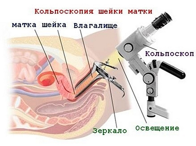 kolposkopija-sut-diagnosticheskogo-issledovanija