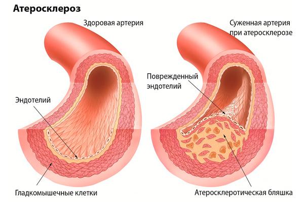 Снижение холестерина маслом оливковым
