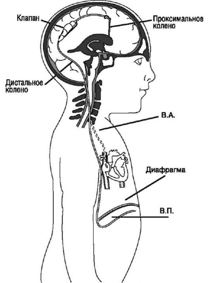Шунтирование головного мозга форум