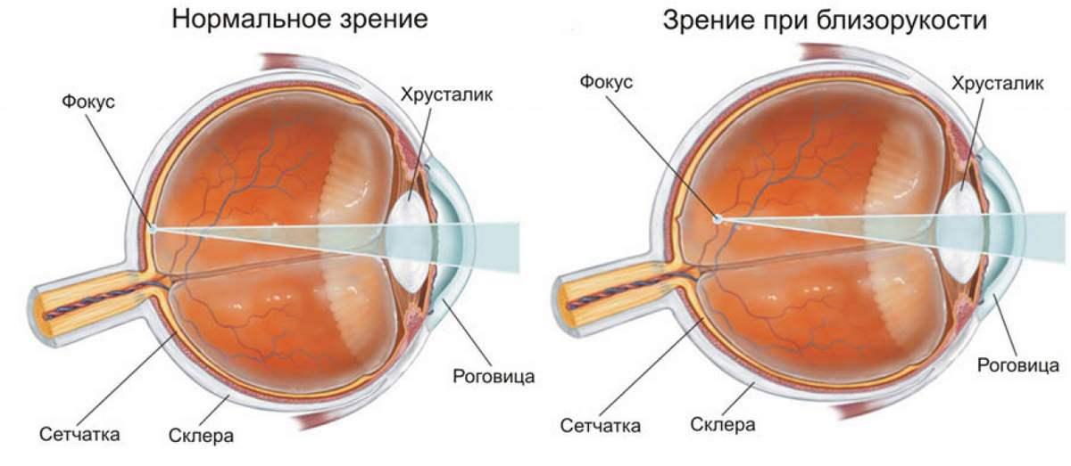 Если глазное давление 35