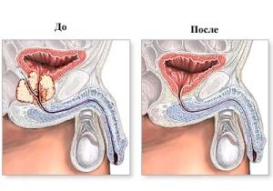 Гипертрофия предстательной железы с нарушением оттока мочи
