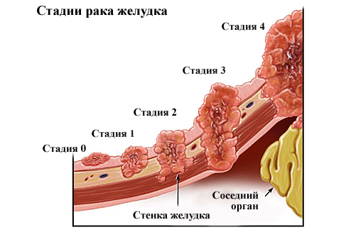 Стадия развития рака желудка