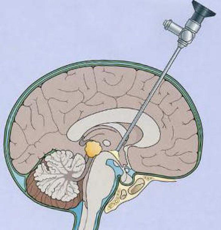 Как лечить водянку головного мозга