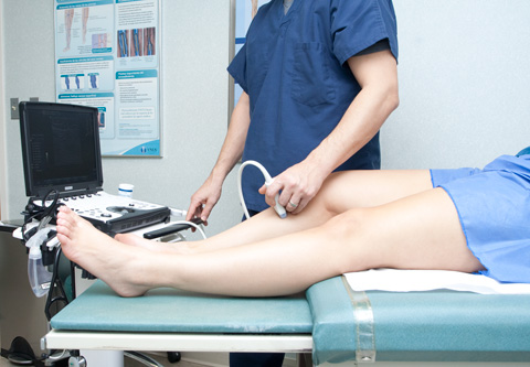 varicose-vein-ultrasound-test