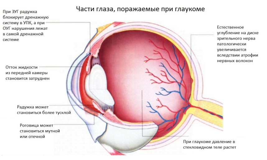 Части-глаза-поражаемые-при-глаукоме