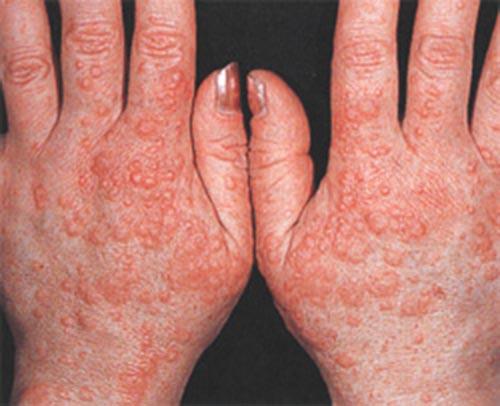 аллергия на холод на ногах зуд