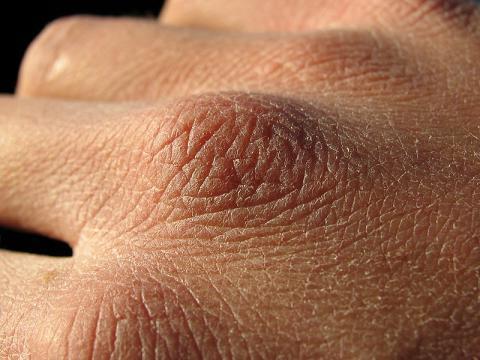 Причины появления цыпок на руках