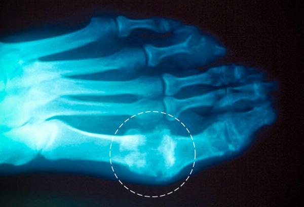 артрит подагрический ноги лечение