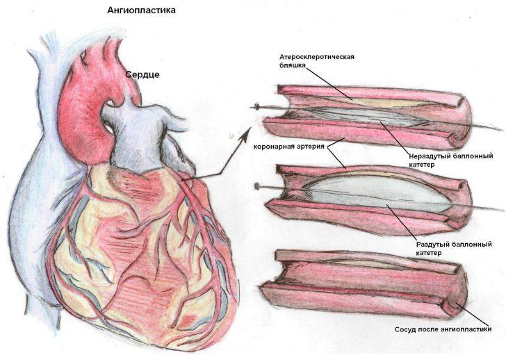 Сердце инфаркт