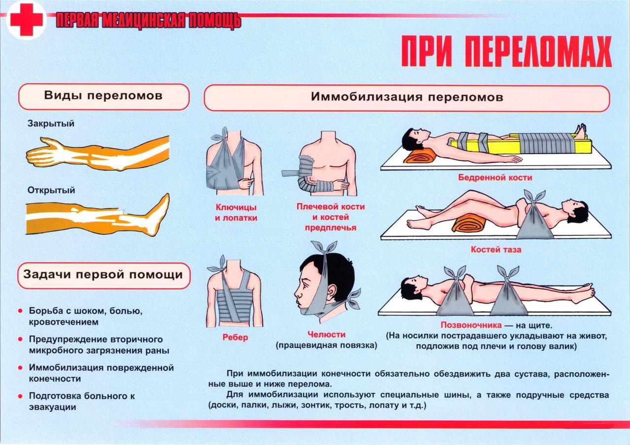 Первая помощь при переломах костей что делать при переломе  помощь при переломе