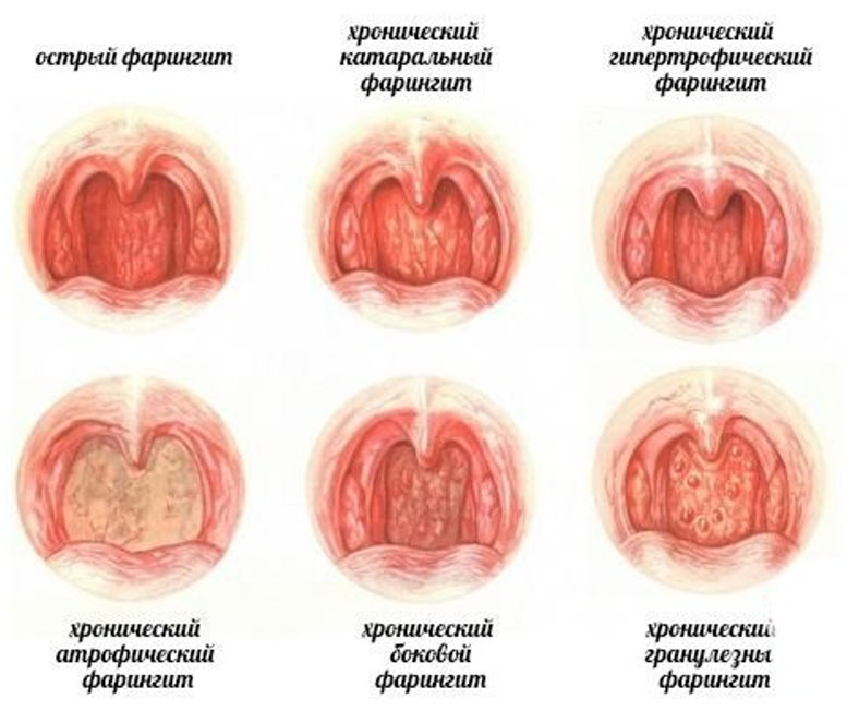 Фарингит тонзиллит ларингит чем и как лечить