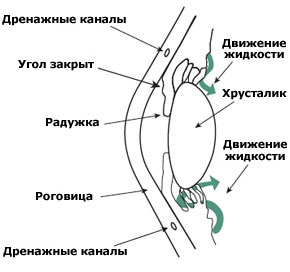 Angle-Closure-Glaucoma